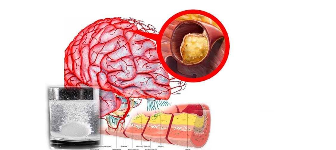 funcția creierului pierderii în greutate
