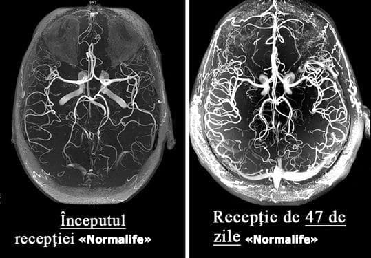 simptomele scăderii în greutate ale creierului pierderea în greutate 78253